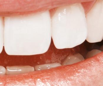 Zahnersatz: Gestern, heute und in Zukunft