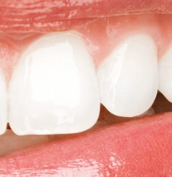 Zähne als Statussymbol