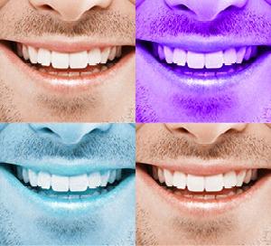 Zahnimplantate als Zahnersatz